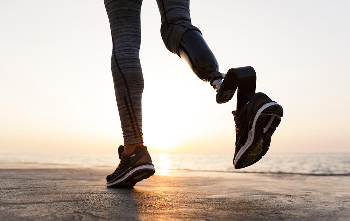 5 Consejos para usar prótesis en clima caluroso
