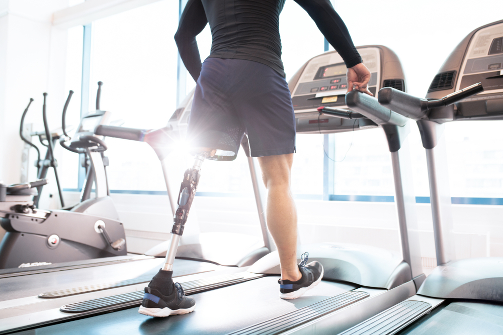 De la amputación al ejercicio