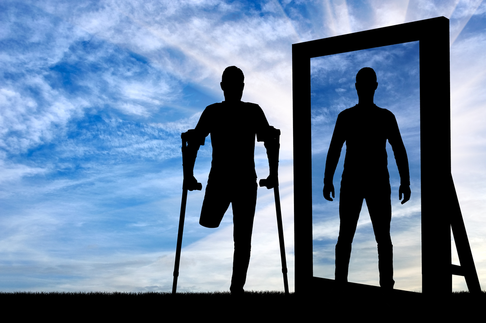 Síndrome del miembro fantasma: El dolor invisible