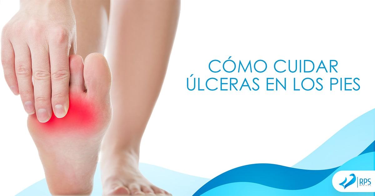 Cómo cuidar úlceras en los pies por diabetes