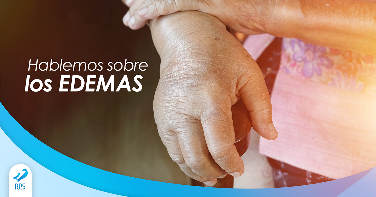 Edemas en pacientes con diabetes y/o amputados: ¿es normal?